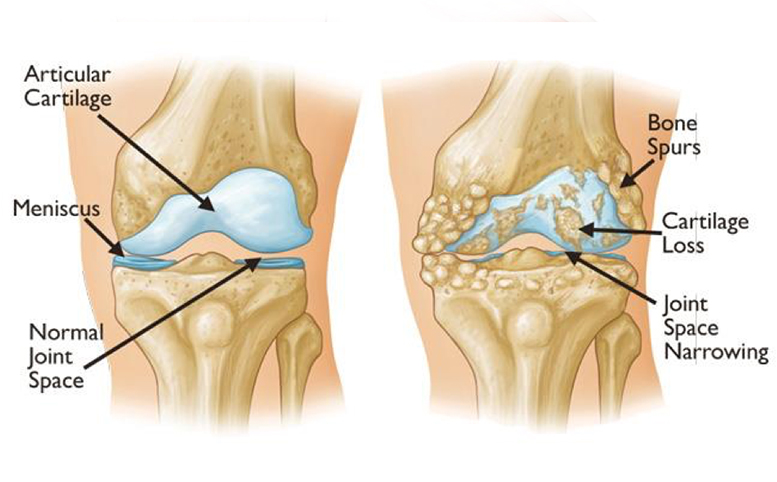 Knee Description