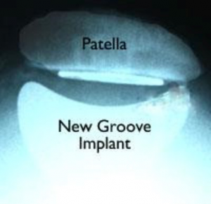 Patella Replacement