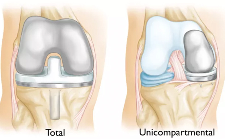 Total Vs Unicompartmental Replacement