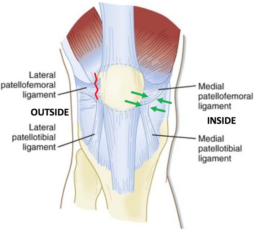 Patella Stabilisation