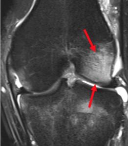 MRI Bone Oedema