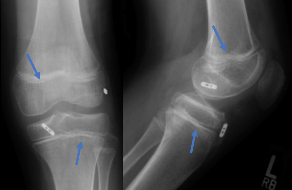 All Epiphyseal ACL