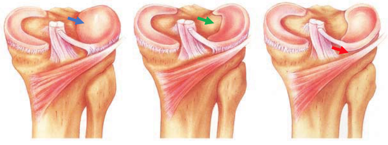 Types of Discoid Meniscus