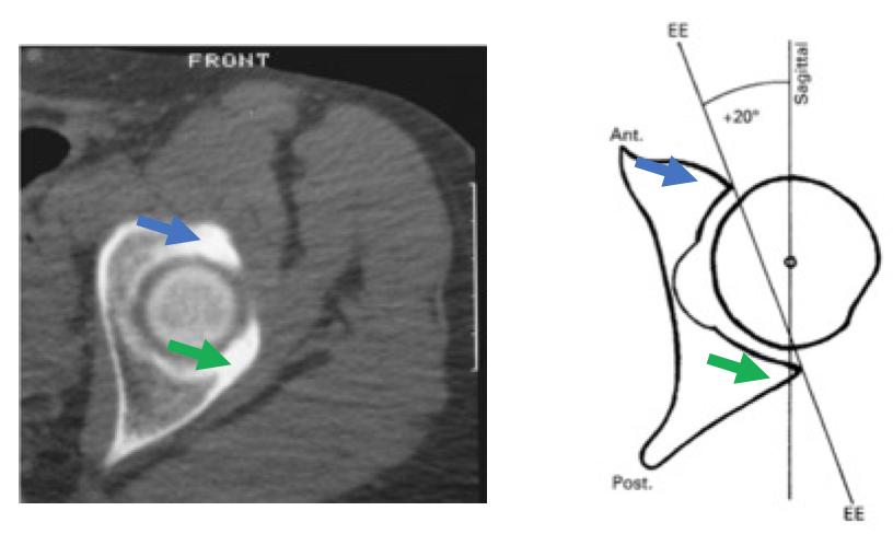 CT Retroversion
