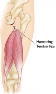 Hamstring Tendon Tear