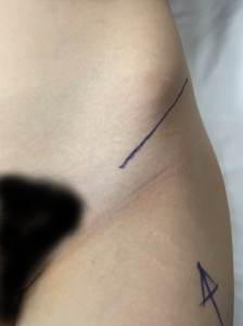 PAO Incision