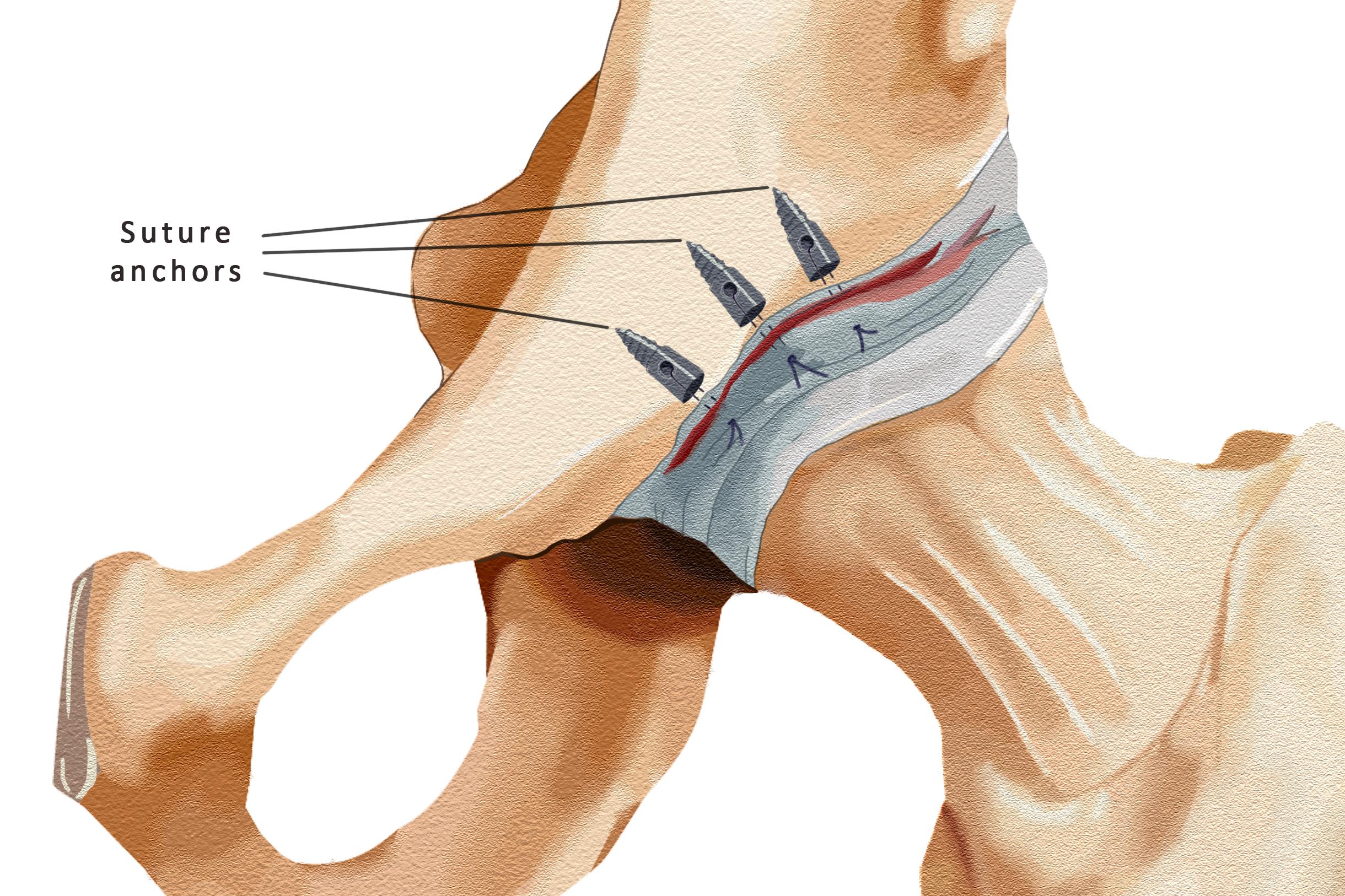 Labral Repair - Suture Anchors