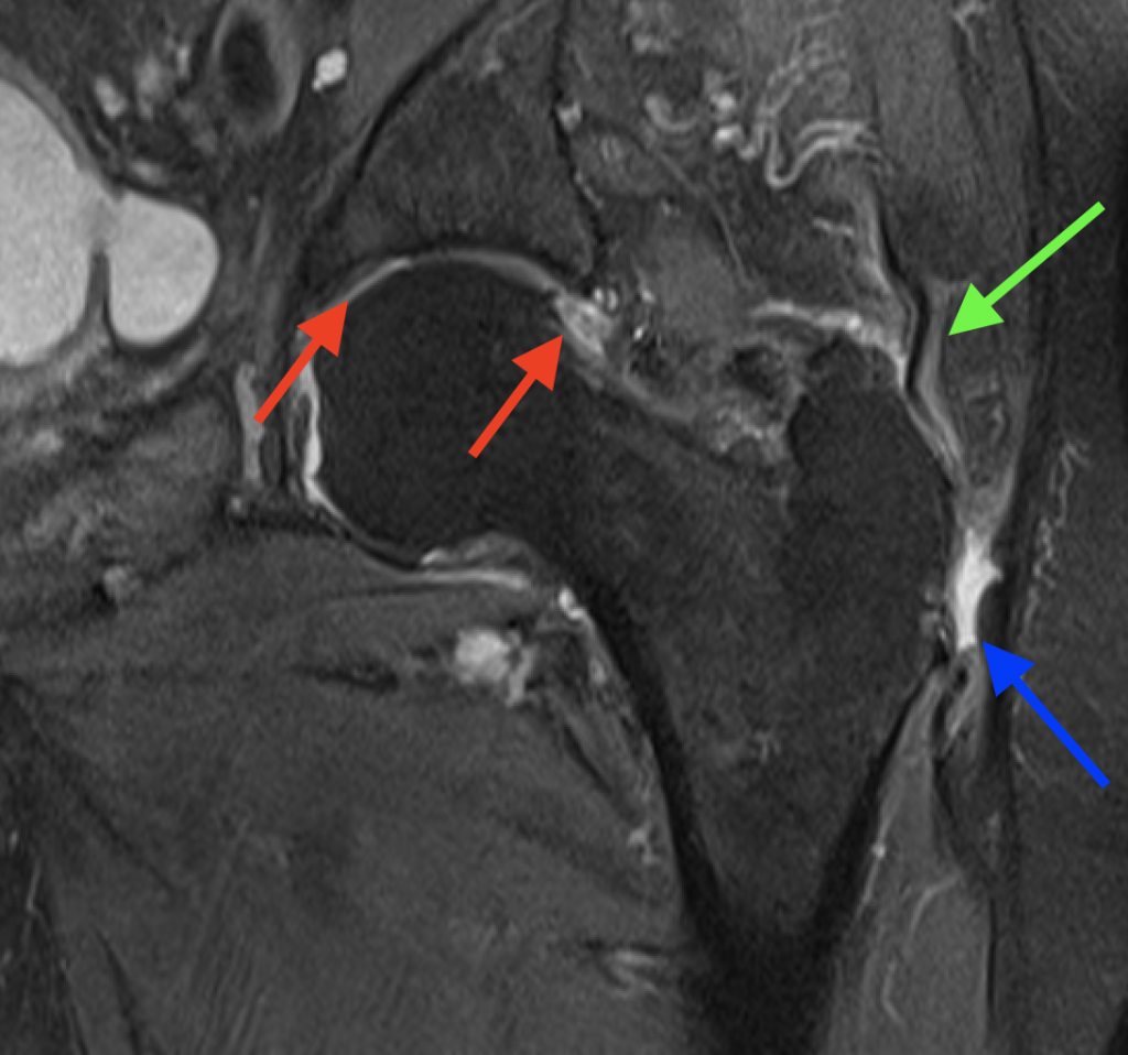 MRI gluteal tendon