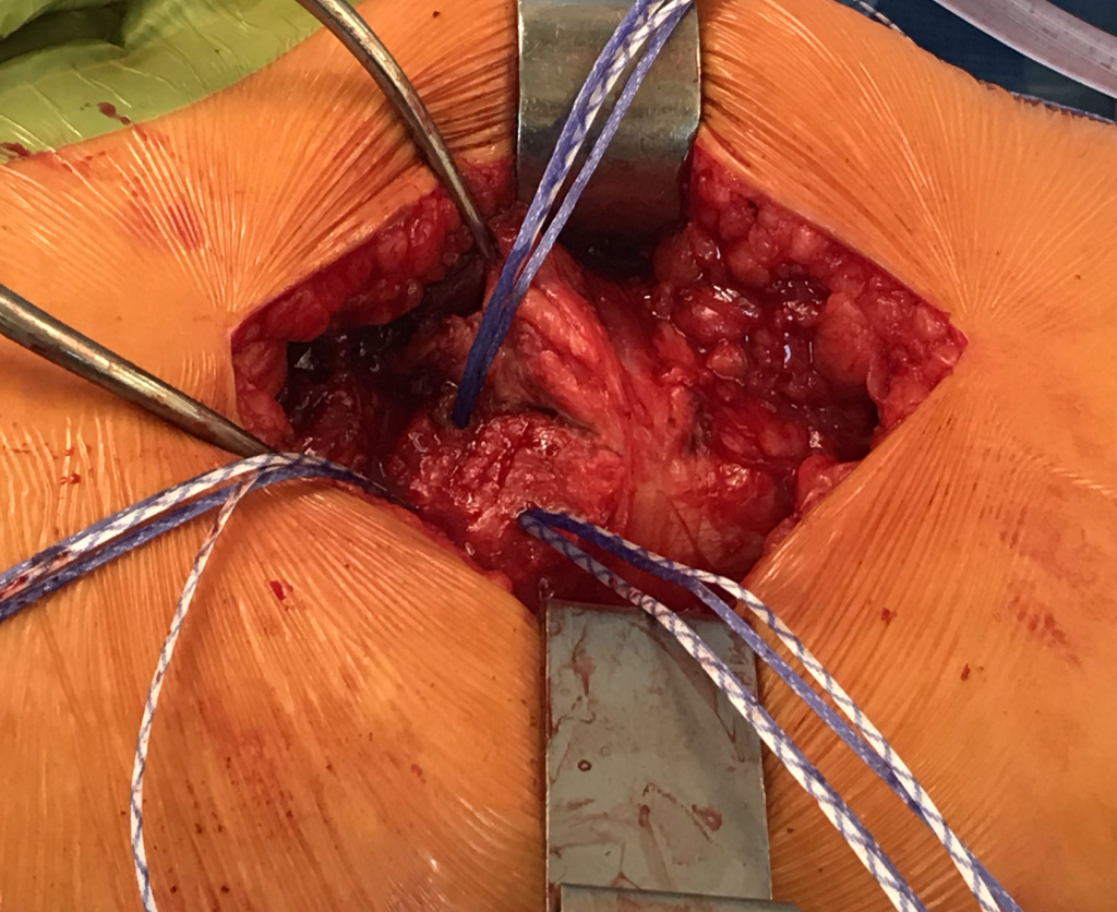 Sutures coming out of the femur bone during a tendon repair