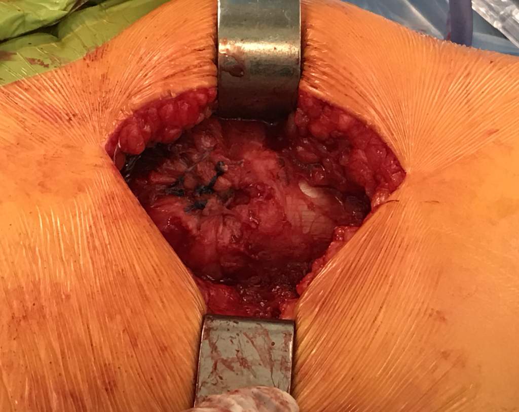 Gluteal Tendon repair